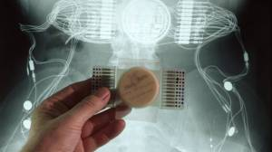 mind-reading-ai-brain-implants